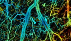 photoacoustic microscopy of mouse ear vasculature